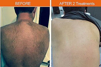 Before and after hair removal treatment with Magma Diode laser