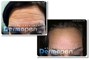 Dermapen before and after treatments
