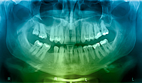 panaoramic dental xray