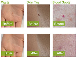 Before and after Dermapen Cryo treatments