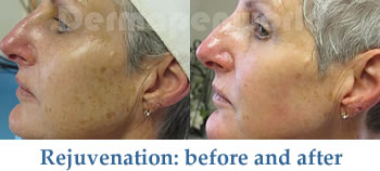 IPL treatment - before and after