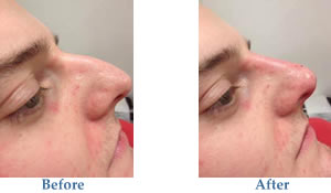 Non-Surgical Rhinoplasty - before and after