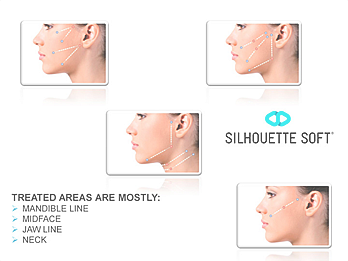 Silhouette Soft® - One Stitch Face Lift