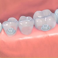 tooth implants Eastbourne