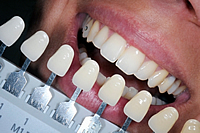 tooth whitening eastbourne